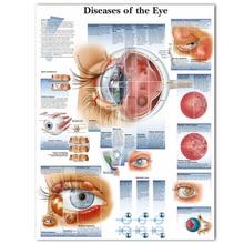 WANGART плакат болезни глаз диаграмма плакаты рефрактивов холст печать настенные картины для медицинского образования домашний декор