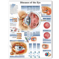 WANGART Poster Diseases of the Eye Chart Posters Refractiv Canvas print Wall Pictures for Medical Education Home Decor