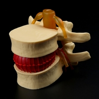 Anatomia coluna lombar disco hérnia anatomia ferramenta de ensino