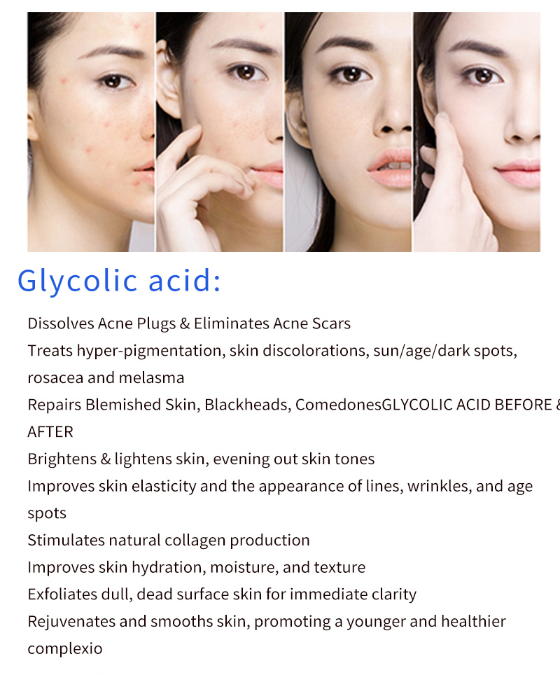 Tools Glycolic Acid Skin Peel 30 Acne Remover Sun Burn Blackhead Clogged Pores Dull Skin Cream Face Exfoliator Aliexpress