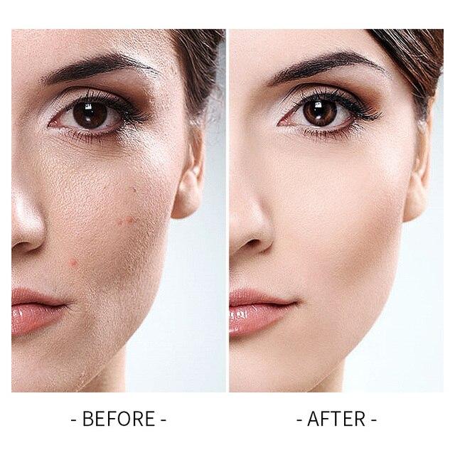 NEW Laikou Full Cover 4 Color Base Concealer Makeup 35g Eye Dark Circles Cream Face Corrector Waterproof Make Up Korean Cosmetic 5