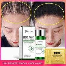 Putimi Hair Growth Essence Anti Hair Loss Prevent Health Care Beauty Dense Extract Hair Growth Serum