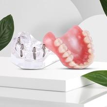Teeth-Model Implants Overdenture with Upper Demo Restoration