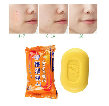 Shanghai Sulfur Soap Oil Control Acne Treatment Blackhead Remover Soap 85g Whitening Cleanser Chinese Traditional Skin Care rose soap 100% natural handmade 120g hair skin beauty whitening moisturizing cleaner antibacterial acne treatment