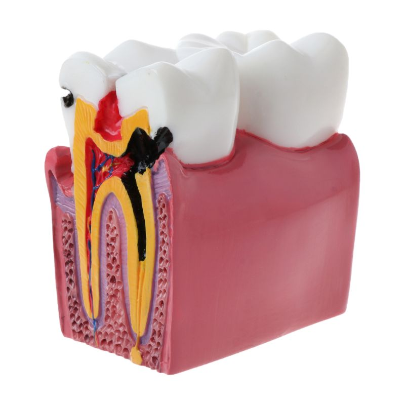 6 Times Dental Caries Comparation Anatomy Teeth Model For Dental Anatomy Lab Teaching Studying Researching Tool