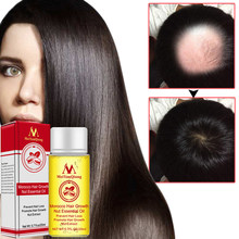 Hair Growth Faster Grow Hair Ginger Shampoo Stop Hair Loss Treatment Natural Andrea Hair Growth Products Ginger Oil(China)