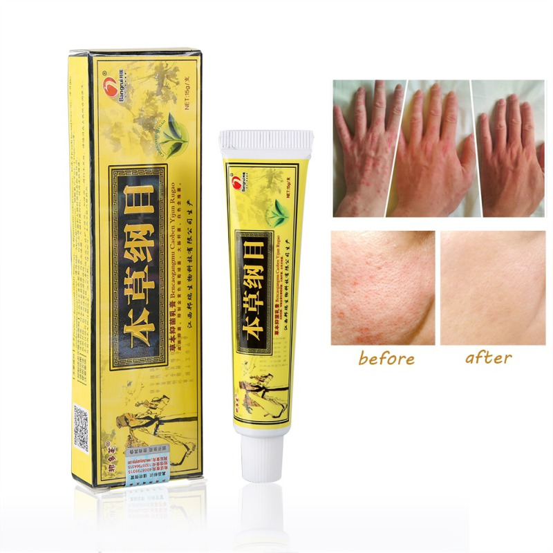 Herbal Antibacterial Anti-Itching Cream Chinese Medical Dermatitis Eczema Treatment Anti-inflammatory Skin Repair