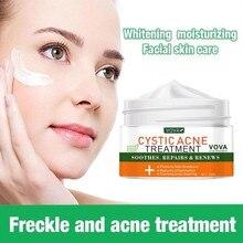 Effective Acne Scar Removal Cream Acne Treatment Fade Acne Spots Remover Oil Control Shrink Pores Anti Body Acne Free Acne Cream