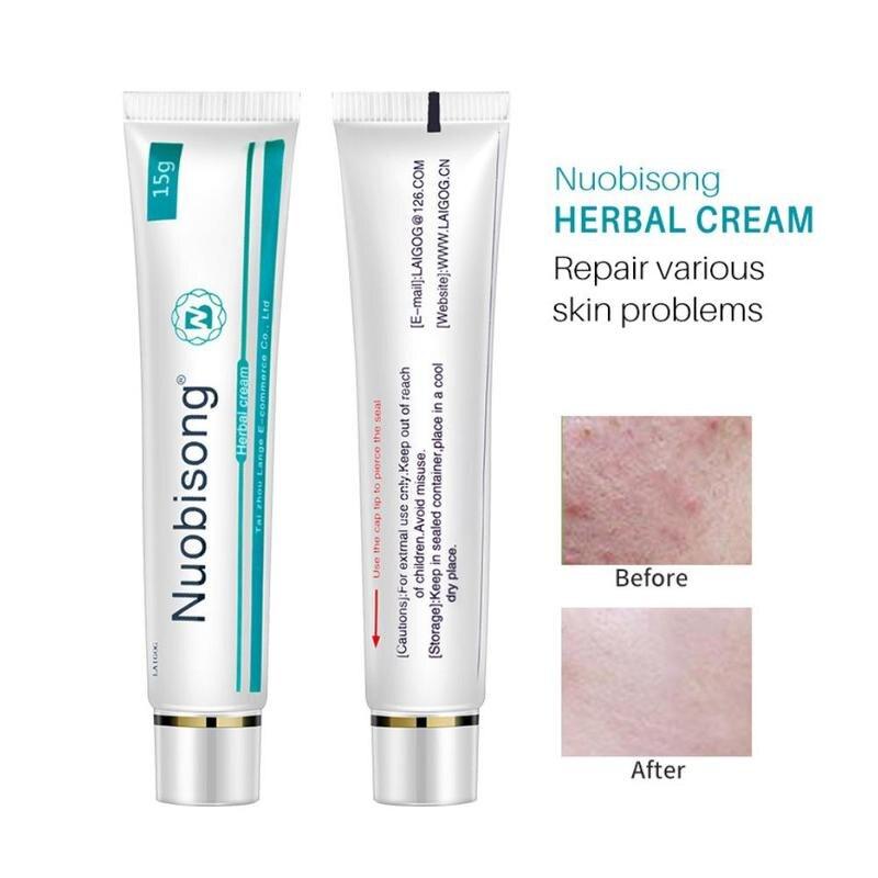 Chinese Herbal Cream Eczema Cream Skin Care Ointment Treatment Cream 15g Repair Various Skin Problem Remove Inflammation Cream
