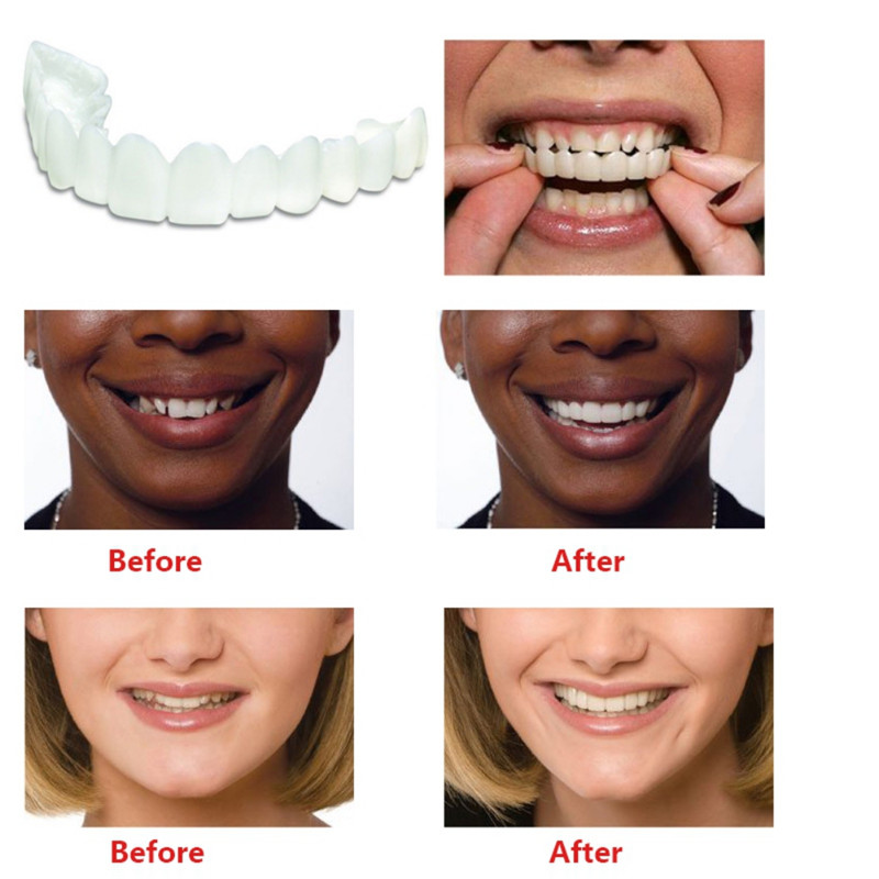 Orthodontic Braces Orthosis Recover Beautiful Tidy White Teeth For Straight Teeth Correction Dental Appliances