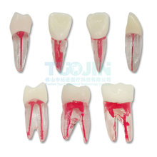 2PCS Dental Endodontic Tooth Model With Colored Root Canal And Pulp Model Dentist Tools For Student Study Practice