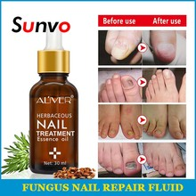 Fungal Nail Treatment Essence Herb Nails Repair Cream Onychomycosis Paronychia Anti Care Shoe accessories