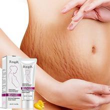 Mango Remove Pregnancy Scars Acne Cream Stretch Marks Scar Treatment Skin C4T6