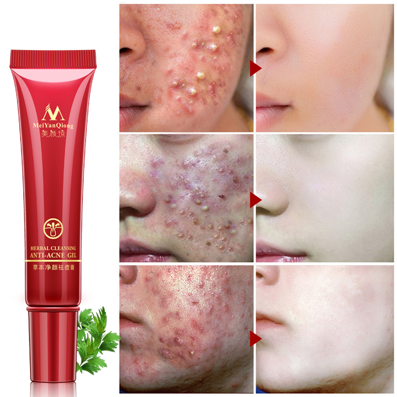 Acne Cream Cleansing Face Anti Acne Treatment Cream Herbal Scar Removal Oily Skin Acne Spots Skin Care Face Repair Face Cream