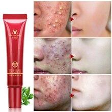 Acne cream Cleansing Face Anti acne treatment cream Herbal scar removal oily ski