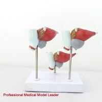 Medical prostate model male doctors communicate with proliferative cancer BPH prostate examination model