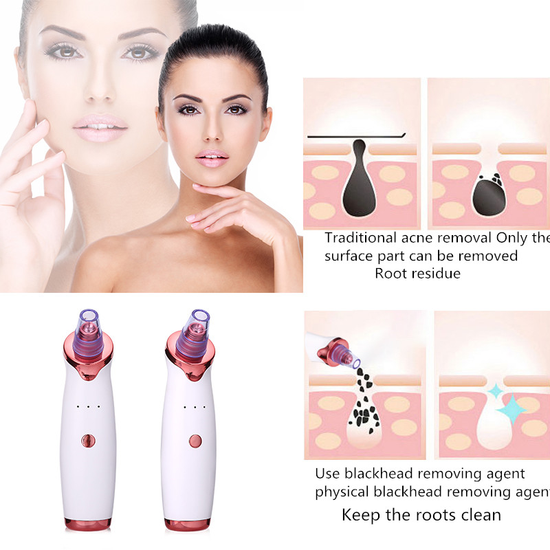 Electric-Blackhead-Remover-Point-Noir-Blackhead-Vacuum-Extractor-Tool-Black-Spots-Pore-Cleaner-Skin-Care-Beauty (1)