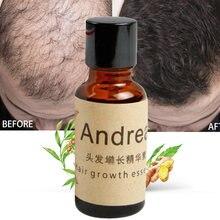 Gorąca sprzedaż 20ml olejki eteryczne ziołowe keratyny esencja na szybki porost włosów utrata cieczy imbir gęsty szybko rosną przywrócenie pielęgnacja włosów