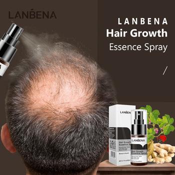 LANBENA wzrost włosów Ginger Essence Spray płyn przeciw wypadaniu włosów opieki zdrowotnej piękno włosów i leczenie skóry głowy dla mężczyzn kobiety 20ml tanie i dobre opinie Firstsun Jedna jednostka 20180005 CN (pochodzenie) Produkt do wypadania włosów Ginseng (Panax Ginseng) Extract Chinese Angelica Extract etc