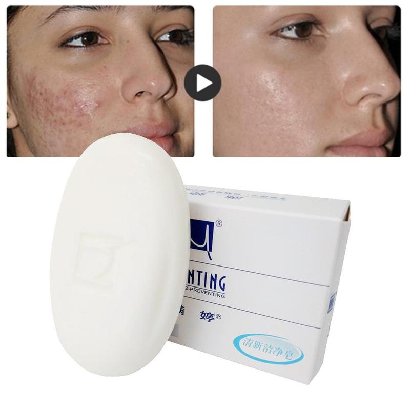 100g Removal Pimple Pores Acne Treatment Soap Cleaner Moisturizing Face Care Wash Basis For Skin Care Anti-Mite Soap