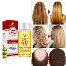 Мощная эссенция для роста волос, масло для выпадения, лечение роста волос, предотвращение выпадения волос, восстановление поврежденных и жи...