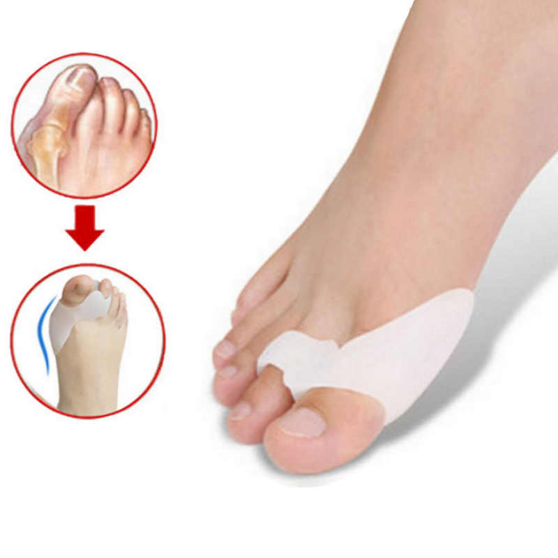 1 par de corrector de hallux valgus hueso pulgar ortésica, ortopédica de silicona gran separador de dedos para juanete corrector para pedicura de cuidado de los pies herramienta