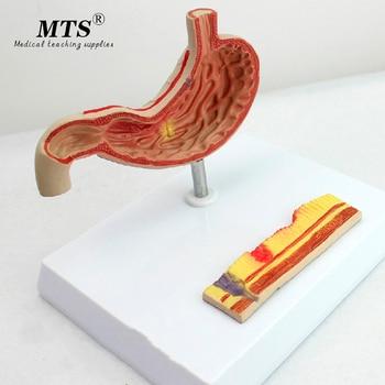 Gastric Ulcer Model Perforation Gastric Anatomical Pathology Model Use Gastroenterology Digestive System Model Medical Science detailed anatomical urinary system model