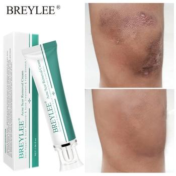 BREYLEE Acne Scar Removal Cream Scar Remover Acne Treatment Skin Repair Fade Stretch Marks Body Scar Moisturizing Skin Care aerocool scar