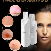 Skin-Scrubber Beauty-Instrument-Device Ultrasonic Spatula Vibrating Peeling Cleansing-Skin