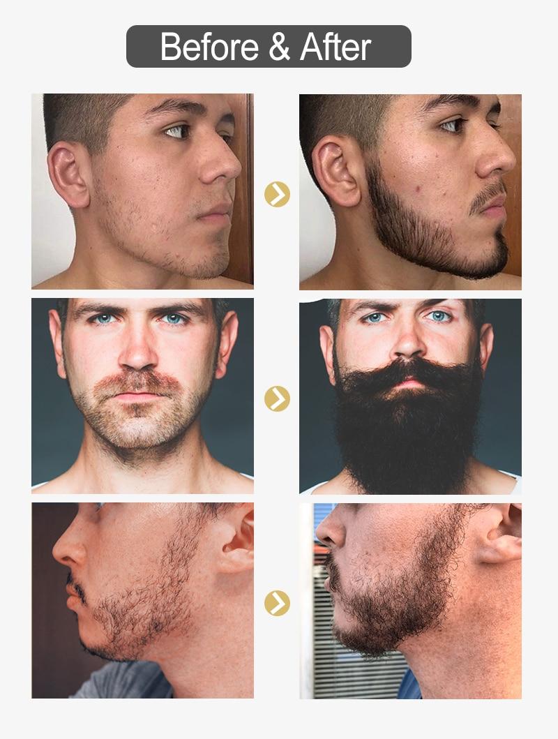 胡子增长液_08