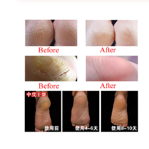 Image 5 - 80g Winter Snake Oil Tender Hand Cream Foot Cream Hand Care Antibacterial Anti chapping Nourishing Anti Aging Skin Care Cream