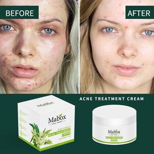 Image 3 - MABOX 20g Acne Treatment Blackhead Remova Anti Acne Cream Oil Control Shrink Pores Acne Scar Remove Face Care Whitening