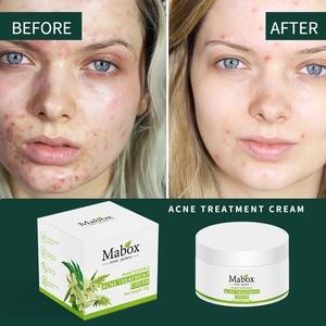 Image 3 - MABOX 20g אקנה טיפול חטט Remova אנטי אקנה קרם שליטת שמן לכווץ נקבוביות אקנה צלקת להסיר טיפוח פנים הלבנת