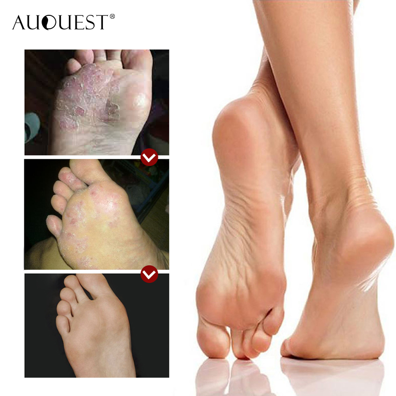 AuQuest Foot Cream Antifungal Itch Anti-chapping Blisters Foot Peeling Skin Deep-repair Moisturizing Soft Smooth Foot Care 4