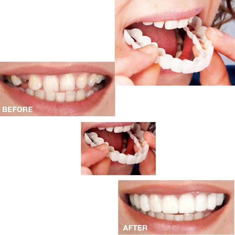 Perfect Smile Veneers Braces Set Smile Denture Cosmetic Teeth Comfortable Veneer Cover Teeth Whitening Teeth Denture Teeth White