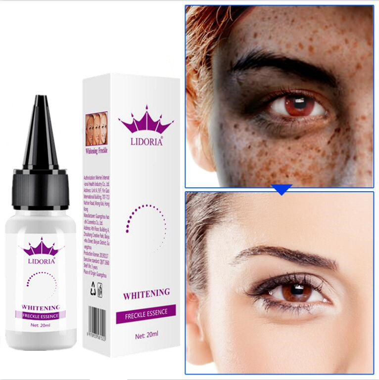 New Strong Effects Powerful Whitening Freckle Essential Oil 20g Remove Melasma Acne Spots Pigment Melanin Face Care Cream