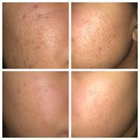 Face Peeling Solution 30ml AHA 30% + BHA 2% Ordinary to peel that dead top layer Make Up Anti Skin Care Serum Oil Balance Base 5