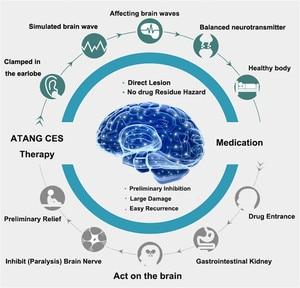 Image 5 - אנטי שינה סיוע נדודי שינה אלקטרו CES Stim מכשיר עבור חרדה ודיכאון לרפא מיגרנה Neurosism