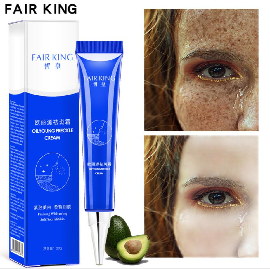 15ML Strong Effects Powerful Whitening Freckle Cream Remove Melasma Acne Spots Pigment Melanin Face Care Cream