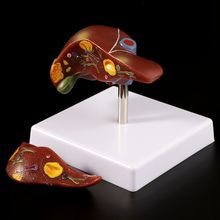 Human Liver Pathological Anatomical Model Anatomy School Medical Teaching Display Tool Lab Equipment figado liver pancreatic cystic structure model medical anatomical digestive stomach hepatobiliary gastrointestinal gasen xh003