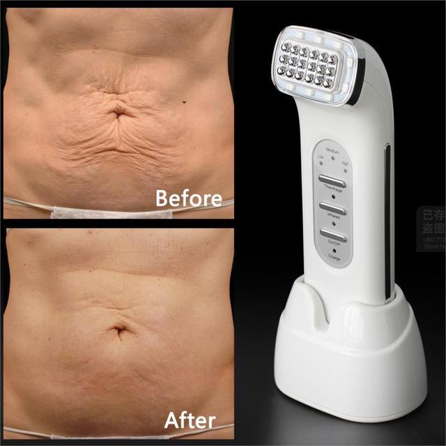 Prawdziwe usuń zmarszczki Dot Matrix twarzy częstotliwości radiowej Lifting Lifting twarzy ciała skóry pielęgnacja Beauty Device 110 240V