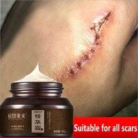 Крем для удаления шрамов WATIANMPH, крем от прыщей, хирургический крем от шрамов для пигментации тела, крем для ухода за кожей, 50 г