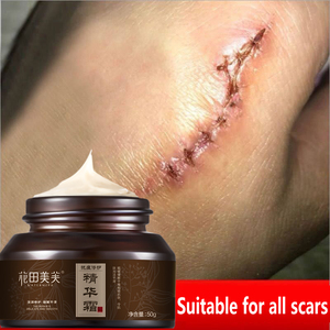 WATIANMPH acne scar removal cream For Old scar Caesarean scars surgical scars burn scars body care Herbs cream kids&Adults 50g