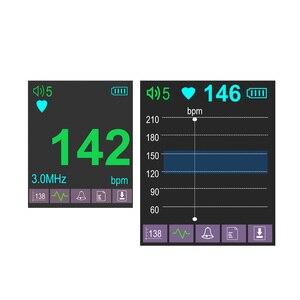 Image 5 - 3MHz 태아 도플러 컬러 LCD 디스플레이 포켓 태아 도플러 태아 심장 아기 심장 모니터 3MHz 프로브 듀얼 인터페이스 디스플레이