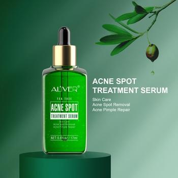 Acne Treatment Serum Facial Serum Anti Acne Scar Removal Cream Whitening Effectively Treat Repair Pimples Skin Care TSLM1 1