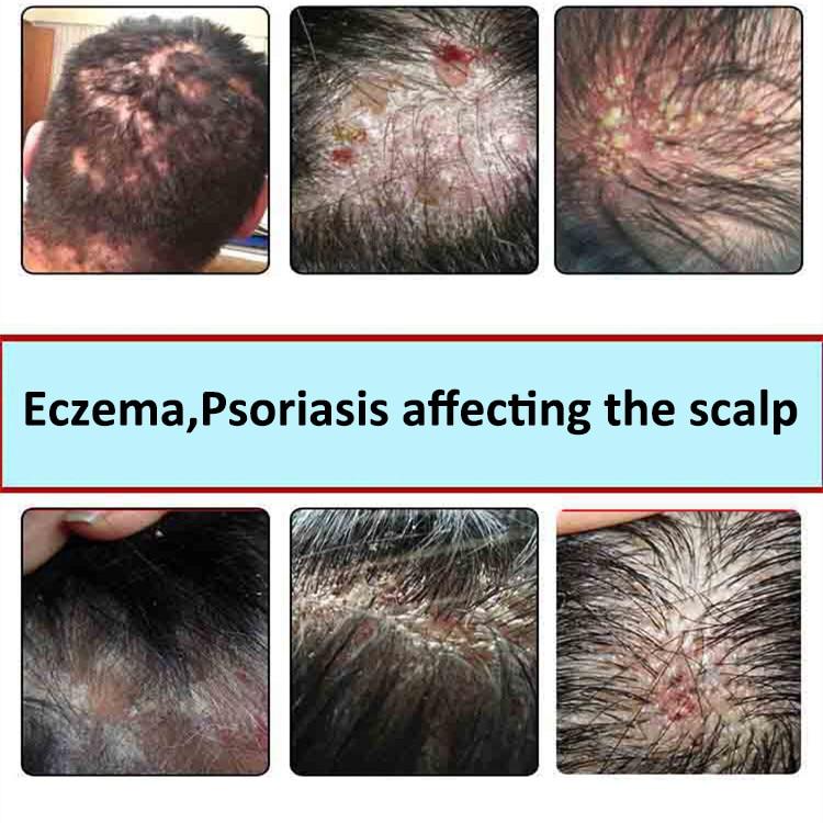 crème psoriasis cheveux
