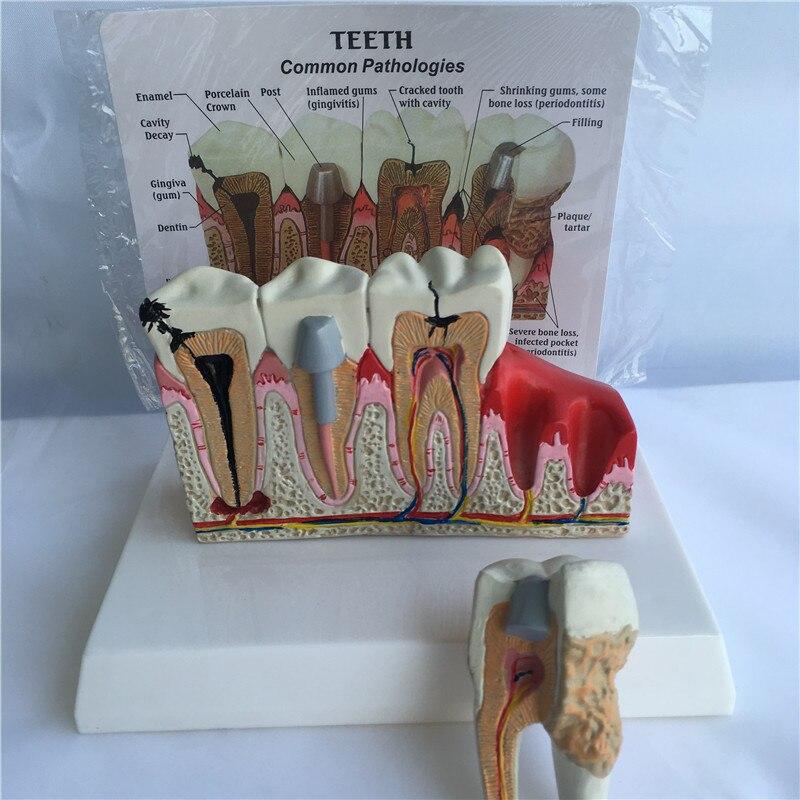 Human Tooth Common Pathologies Anatomy Model   Dental Model Medicine Teaching Instrument