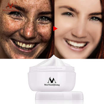 Powerful Whitening Freckle Cream 40g Remove Melasma Acne Spots Pigment Melanin Dark Spots Face Lift Firming Face Care Cream skin