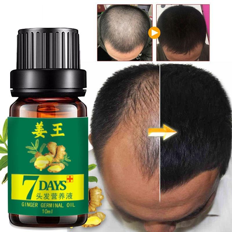 Сыворотка для быстрого роста волос Ginger, эфирное масло, жидкость для предотвращения выпадения волос, восстановление поврежденных волос