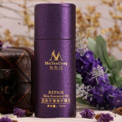 MeiYanQiong 10ml Acne Scar Repair Essential Oil Lavender Whitening Skin Care Essential Oil Remove Ance Burn Strentch Marks TSLM2 Karachi